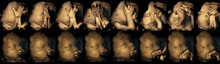 Efectos nocivos del tabaco en fetos