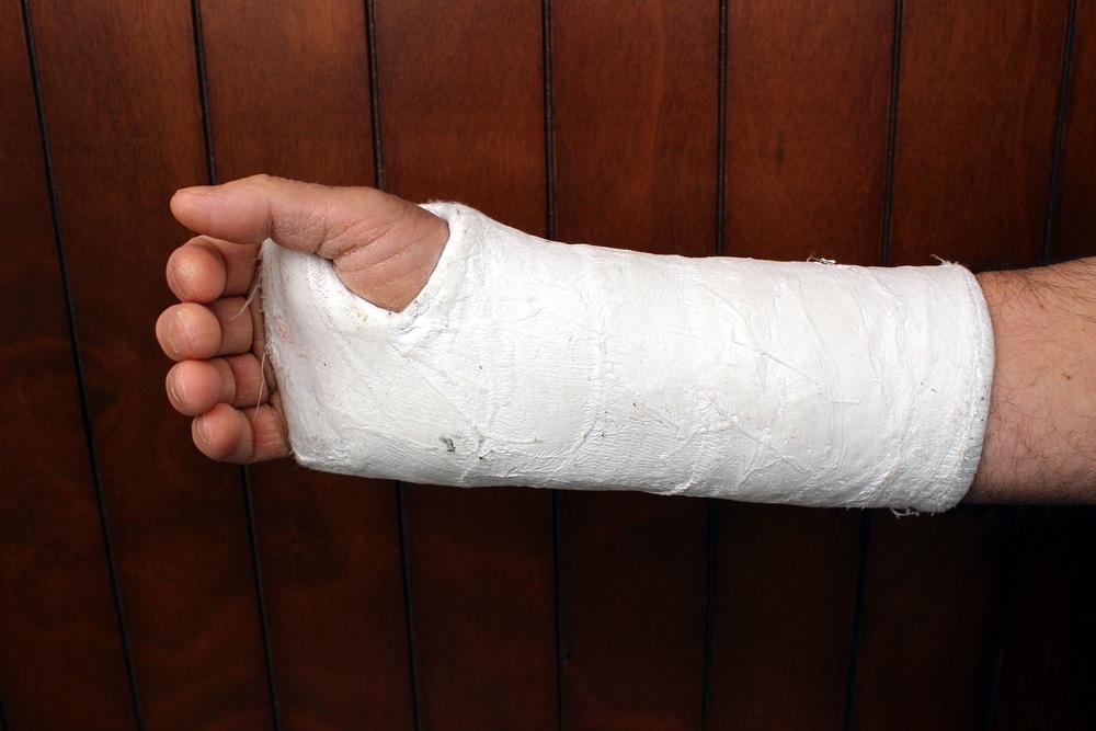 Escayola-brazo